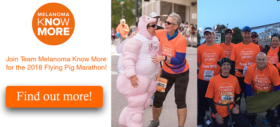 Join Team Melanoma Know More