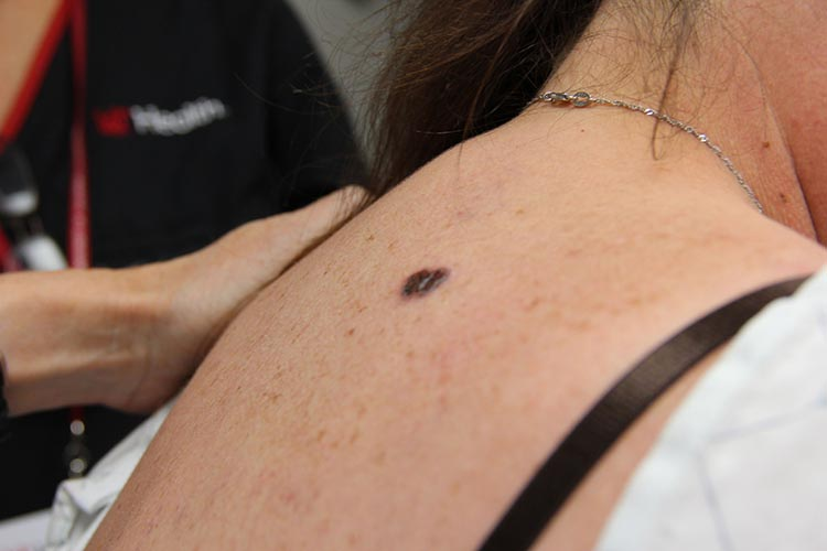 The Seven Different Types Of Melanoma Skin Cancer
